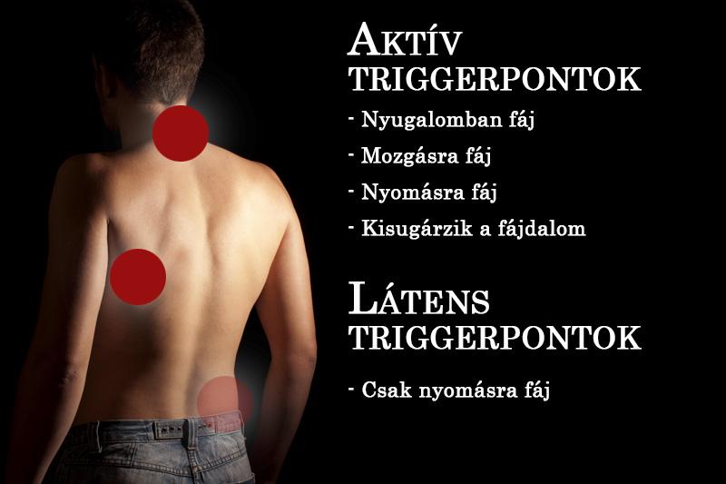 Aktív- és látens triggerpontok